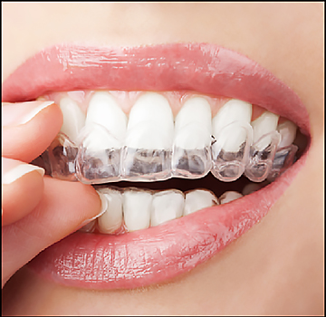 Clear retainers at an affordable price